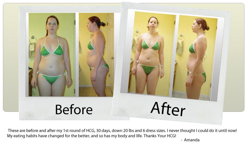 your-hcg-before-after_amanda